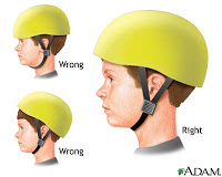Prevent Brain Injury from Outdoor Activities