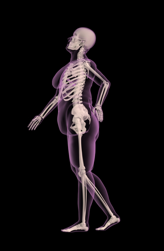 Back Pain? Consider Your Weight